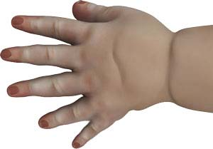 Congenital Defects of the Hand and Wrist